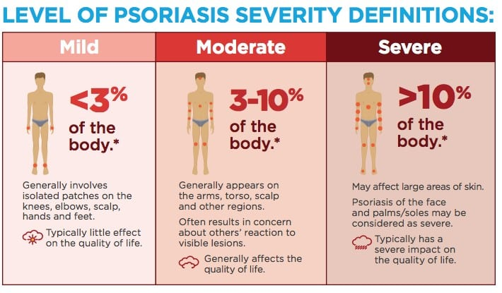 levels of psoriasis severity
